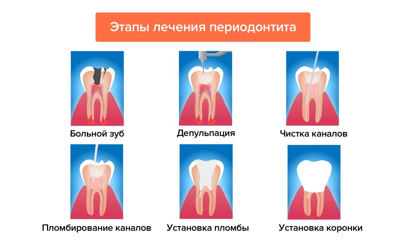 Этапы лечения периодонтита в картинках