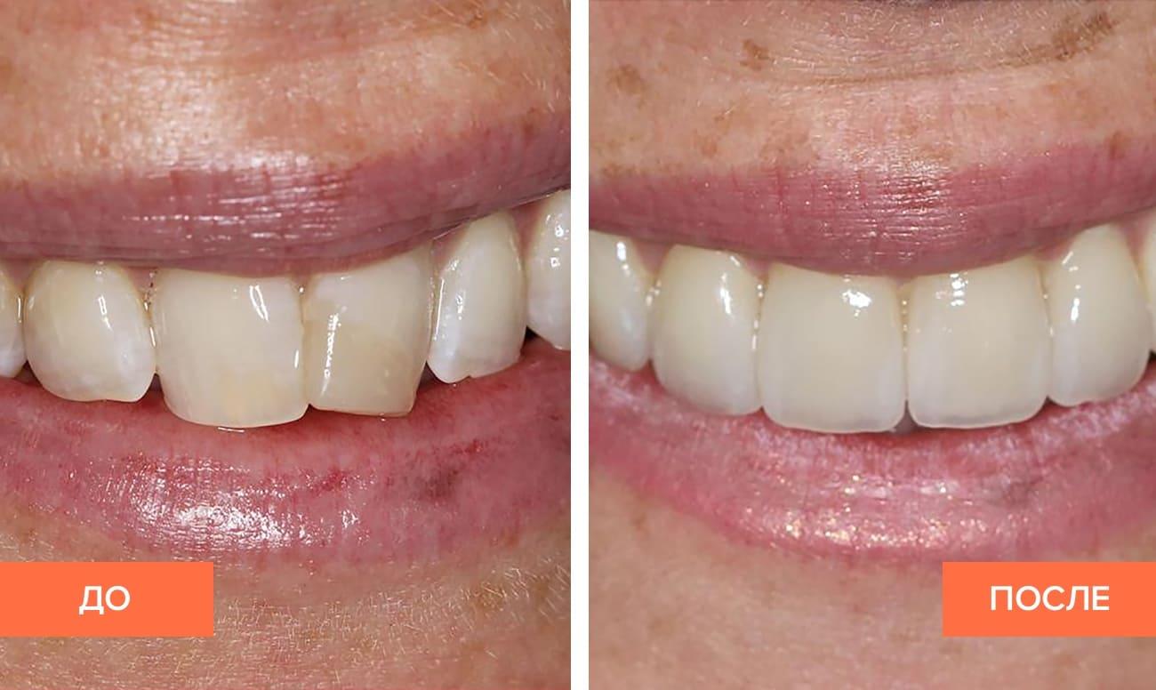 До и после установки коронок на передние зубы