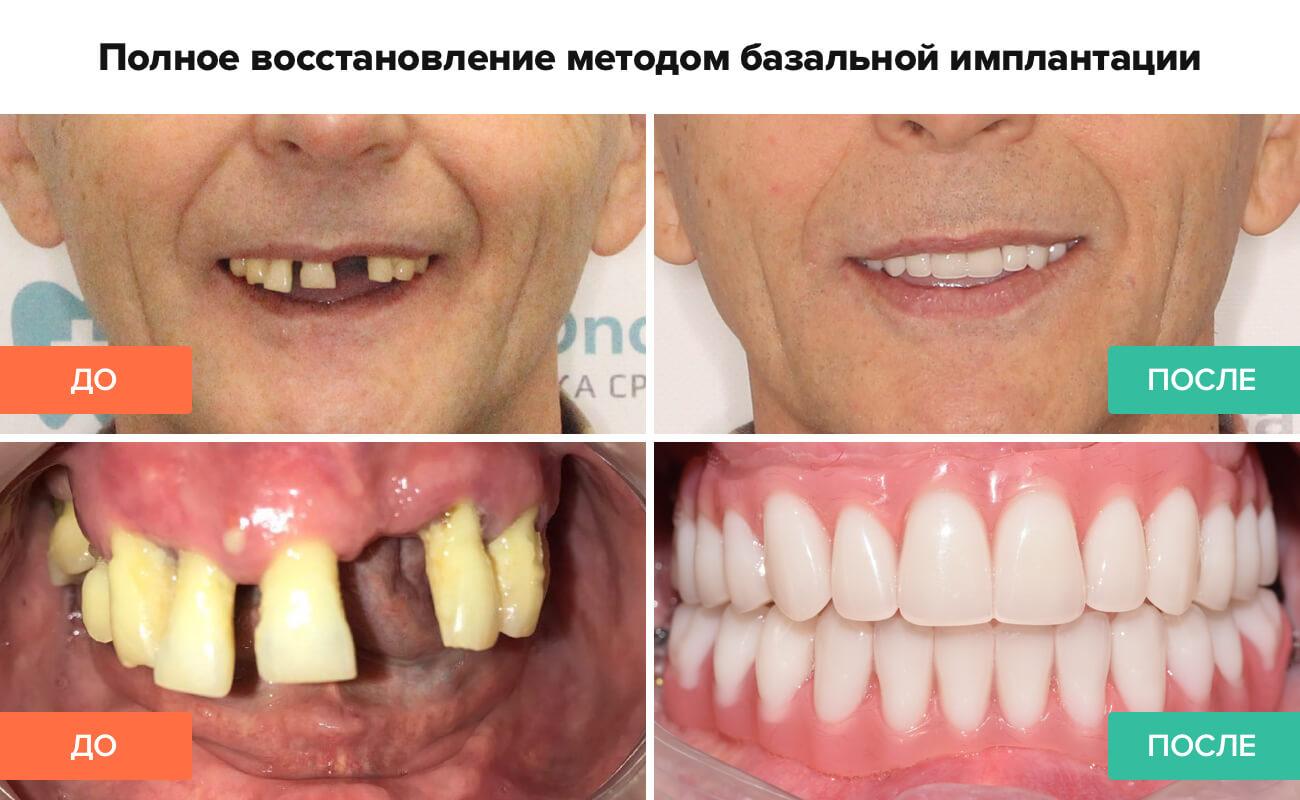 Фото пациента до и после базальной имплантации