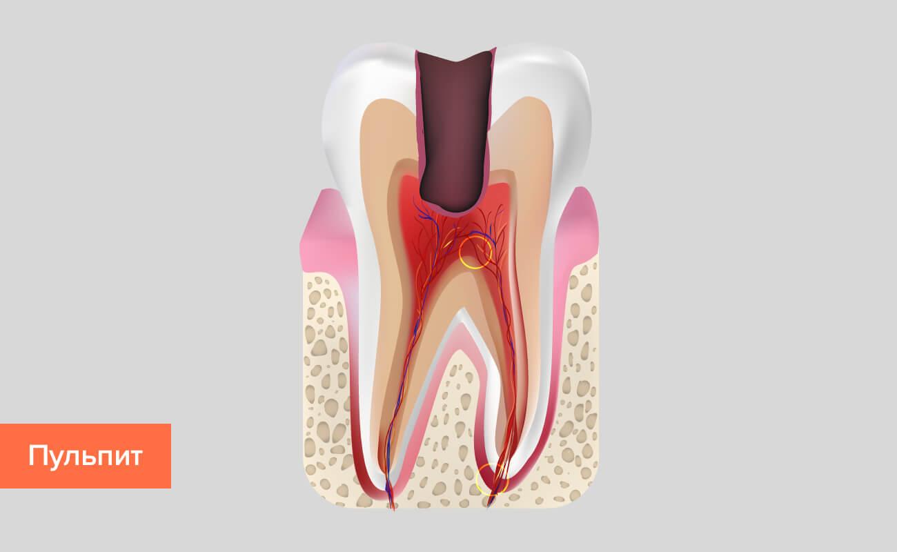 Пульпит зуба в картинках