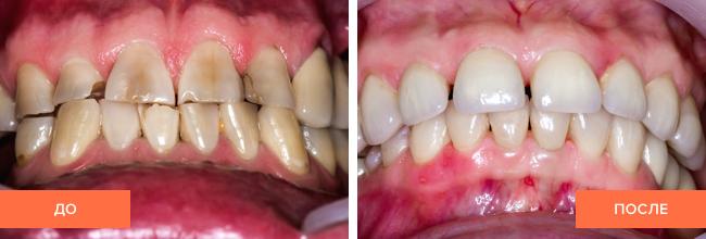 Фото пациента до и после реставрации зубов винирами