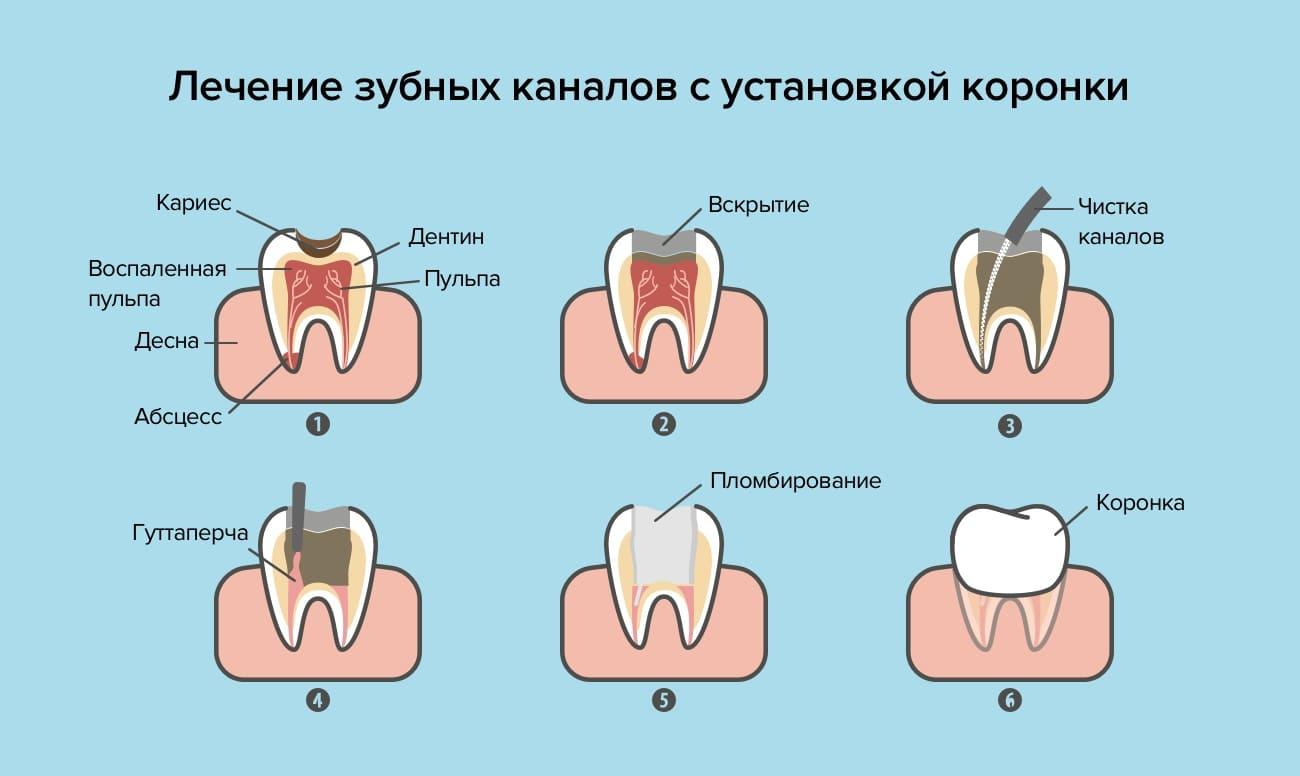 Лечение зубных каналов с установкой коронки в картинках