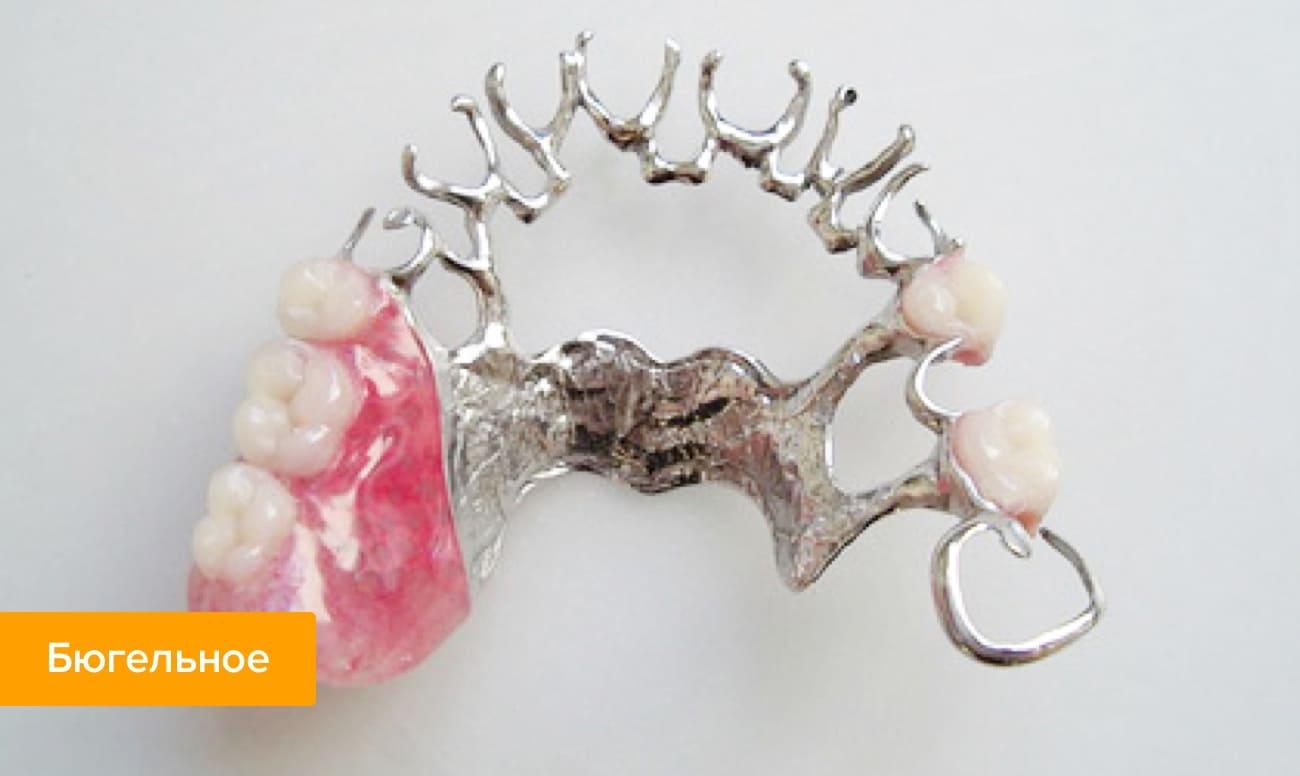 Фото бюгельного протеза для шинирования зубов
