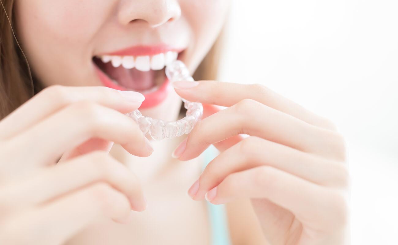 Фото прозрачных кап для выравнивания зубов