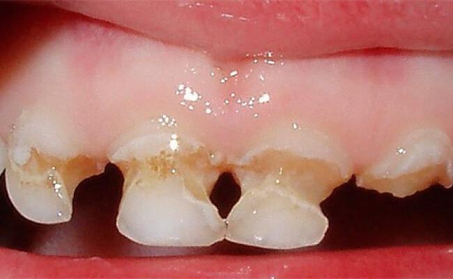 Кариес молочных зубов у детей раннего возраста (фото) и