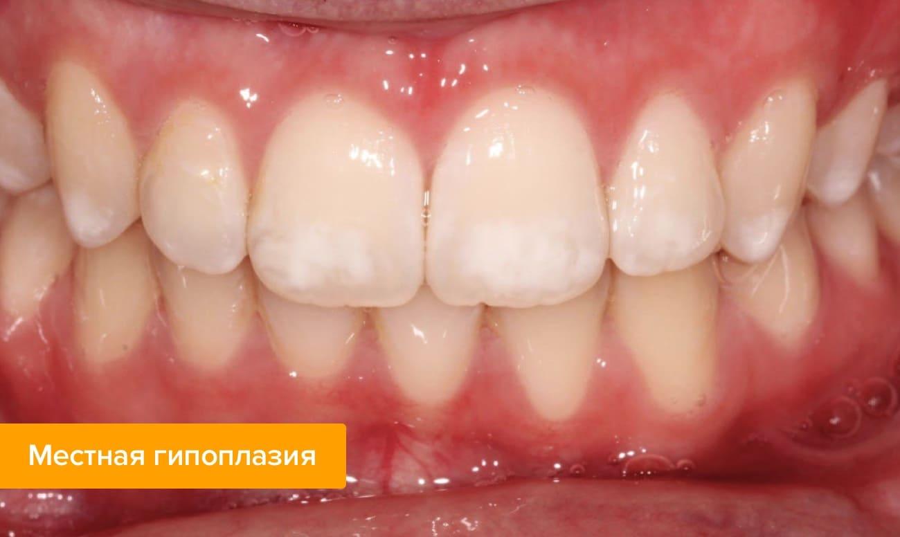 Фото местной гипоплазии на зубах