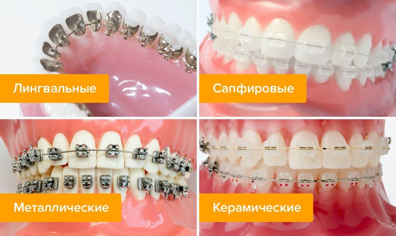 Фото различных видов брекетов на пластиковых челюстях