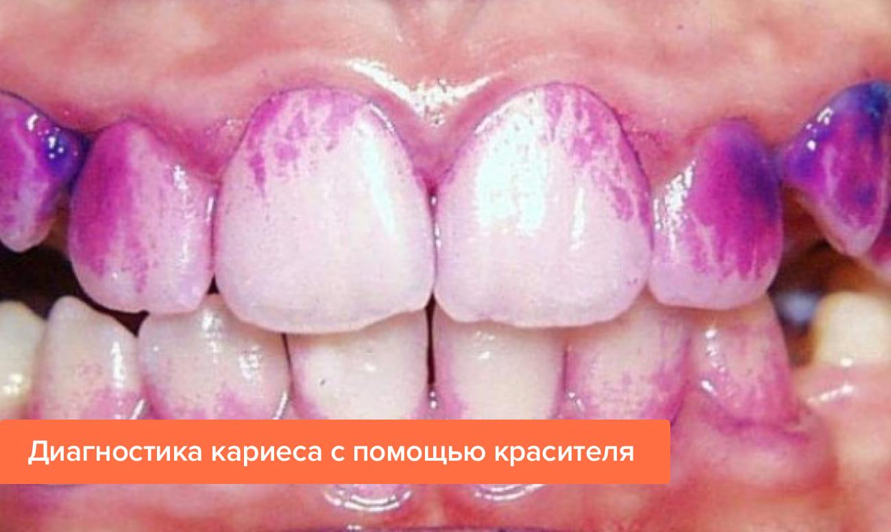 Фото диагностики кариеса с помощью красителя