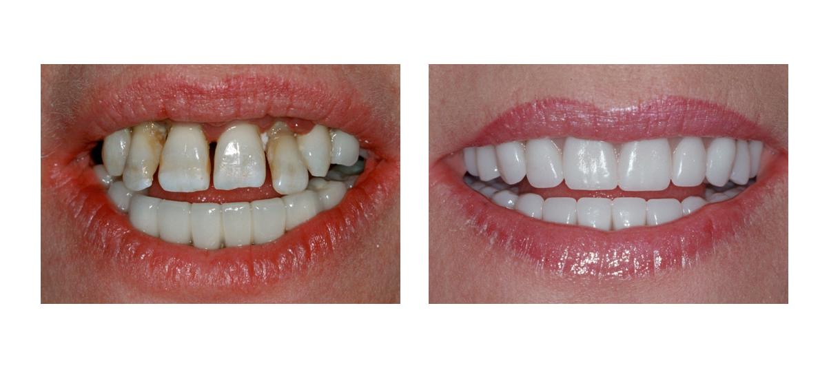 фото улыбки виниров до и после