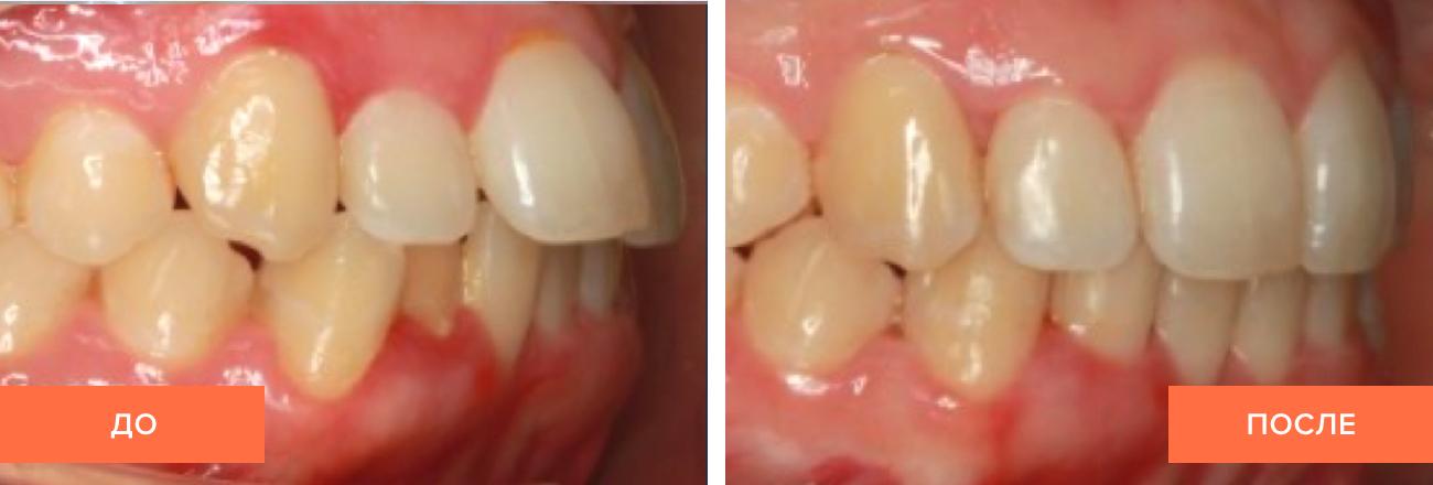 Фото пациента до и после выравнивания зубов капами
