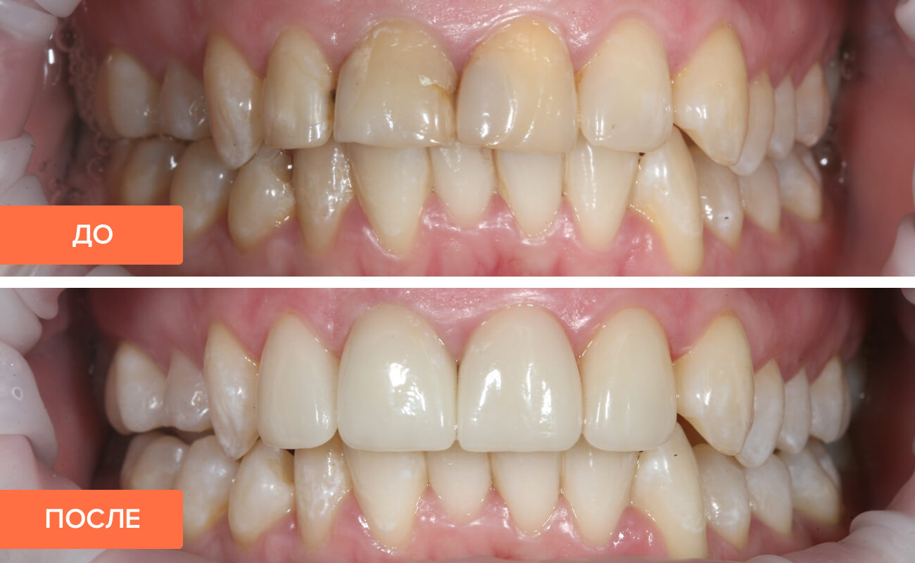 Фото пациента до и после установки циркониевых коронок