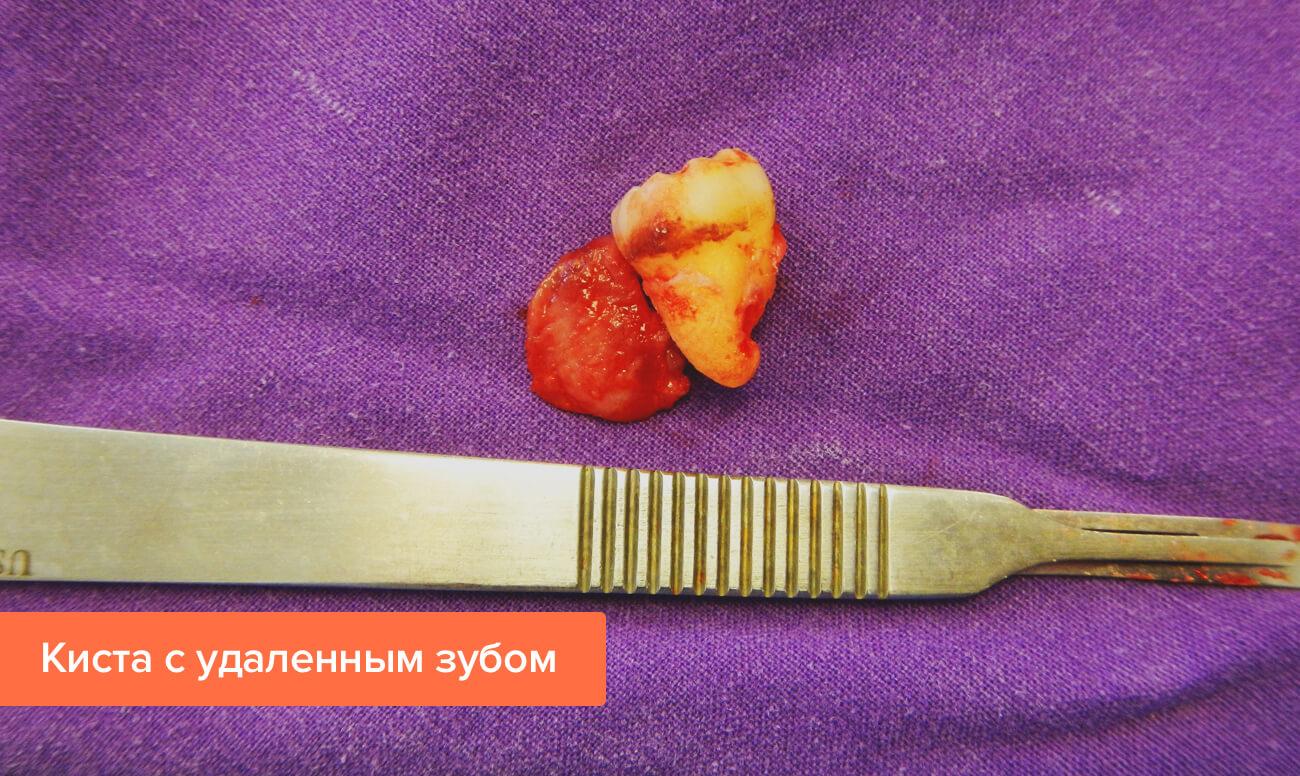 Фото кисты с удаленным зубом