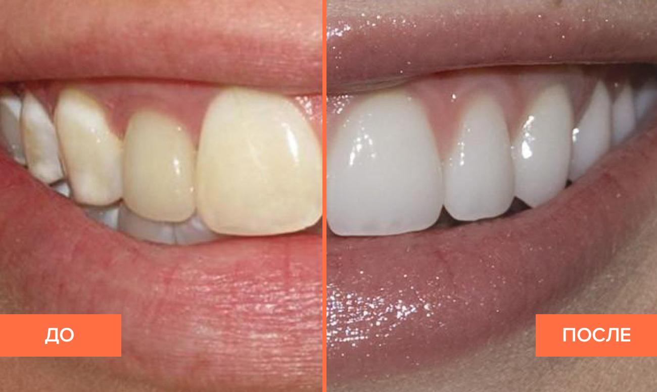 Фото пациента до и после отбеливания при флюорозе