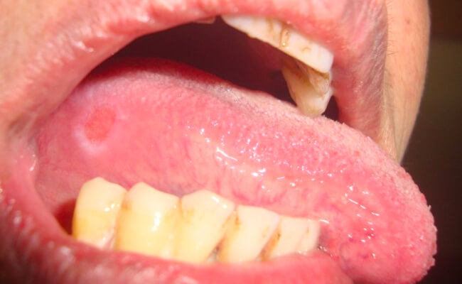 Фото пациента с афтозным глосситом
