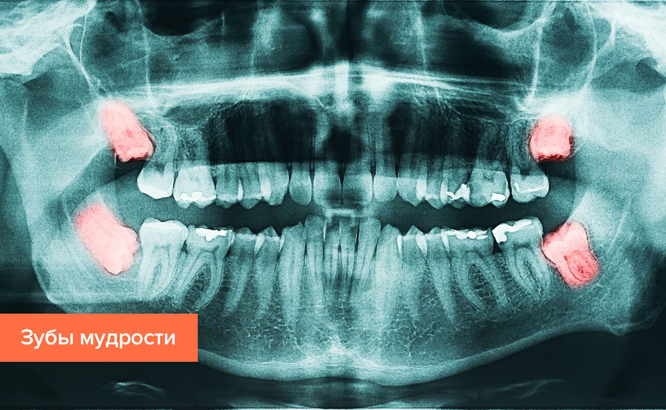 Зубы мудрости на рентгеновском снимке