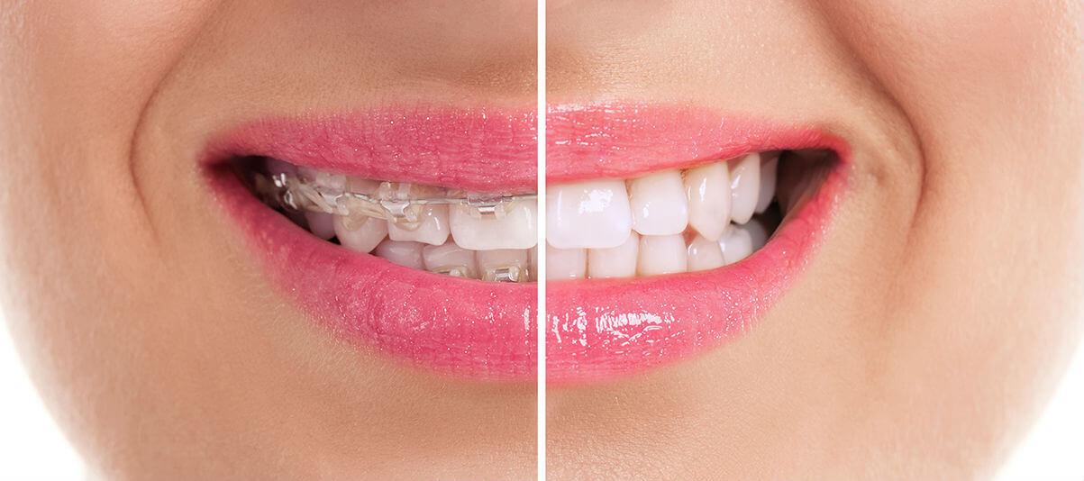 Фото пациента до и после лечения брекетами