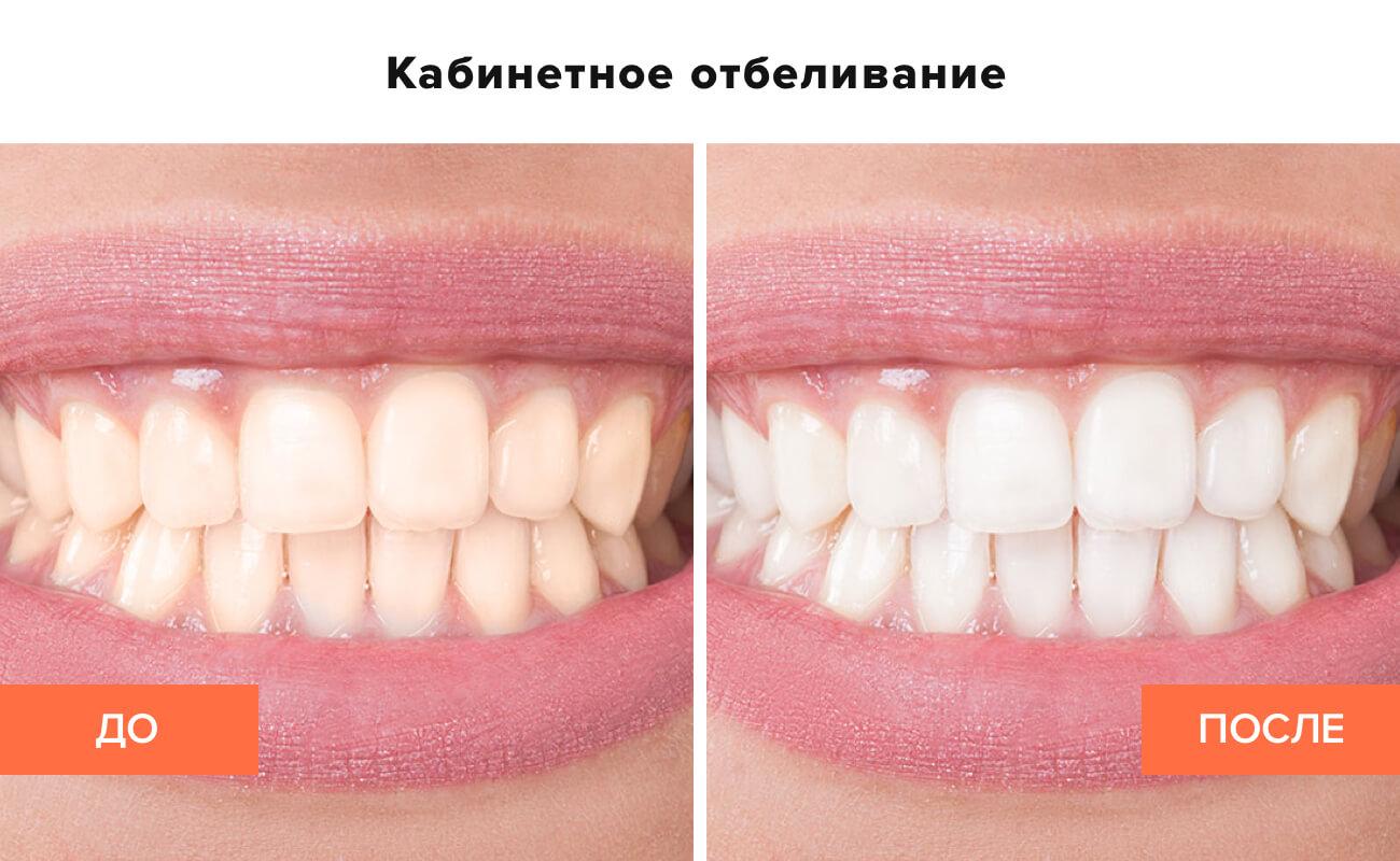 Фото пациента до и после кабинетного отбеливания