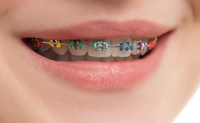 Фото обычных брекетов с лигатурами на зубах