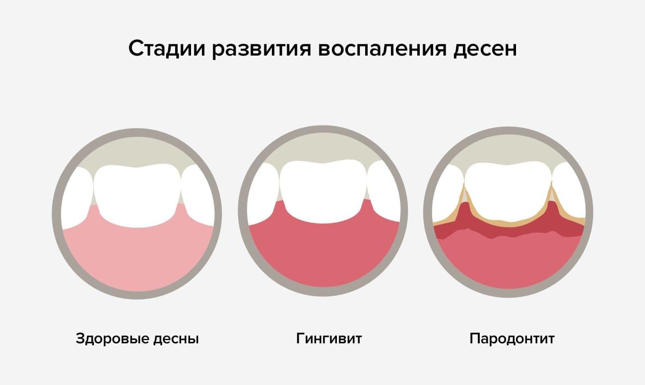 Стадии развития воспаления десен в картинках