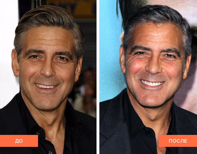 Фото Джорджа Клуни до и после установки виниров