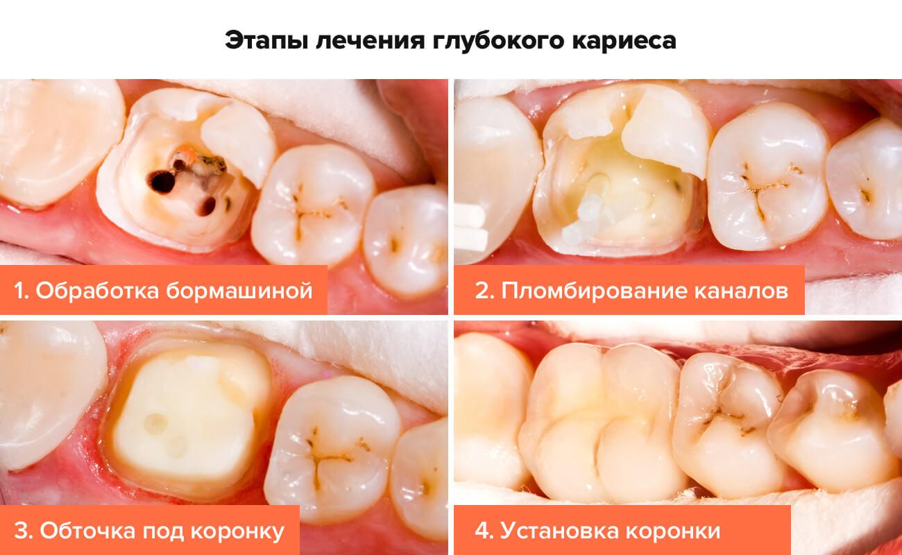 Фото этапов лечения глубокого кариеса