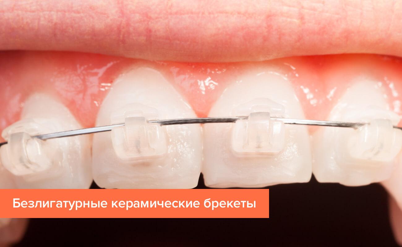 Фото безлигатурных керамических брекетов на зубах