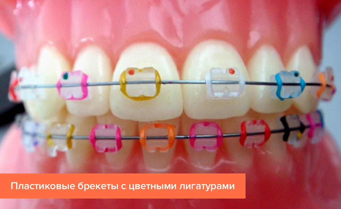 Фото пластиковых брекетов с цветными лигатурами на зубах