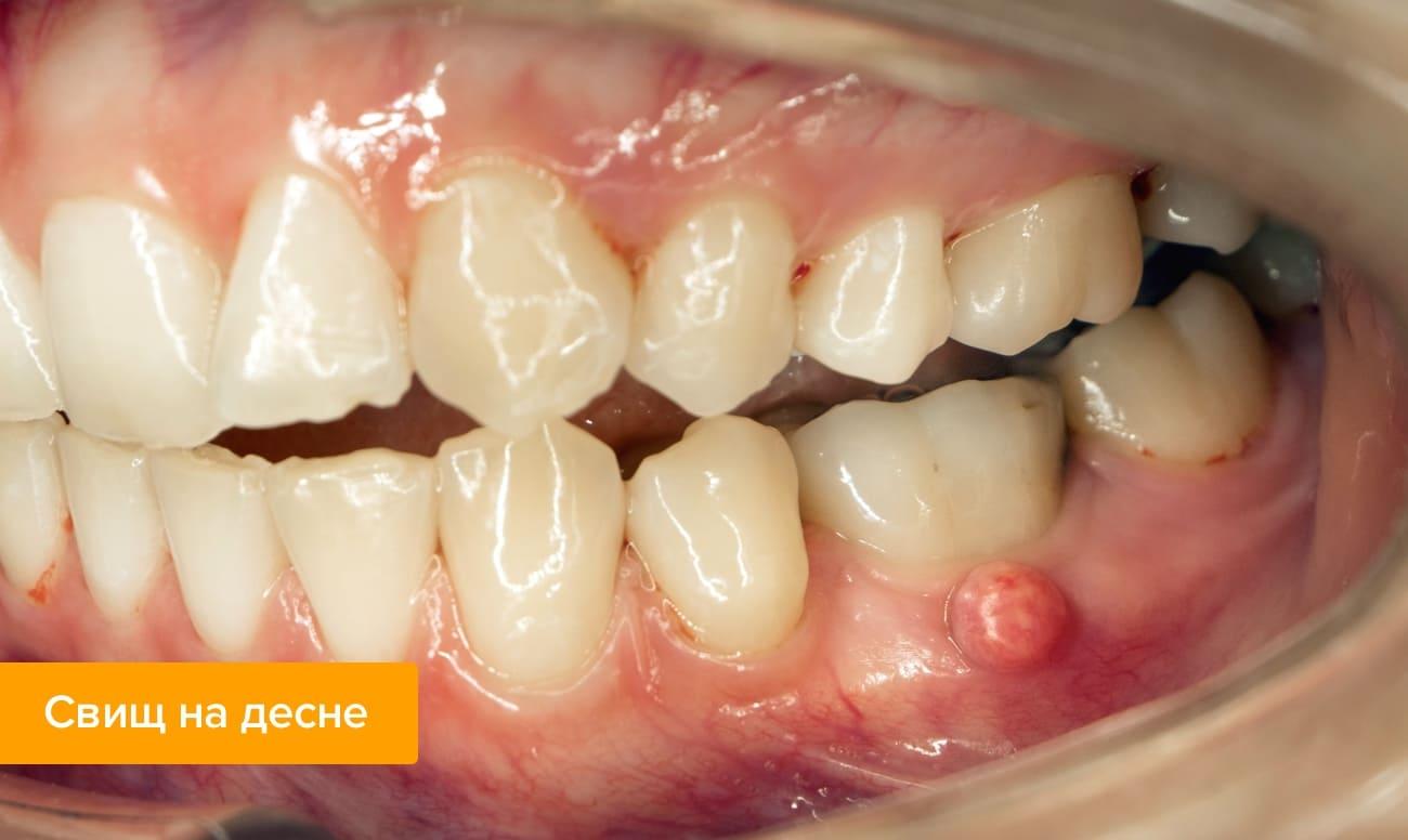 При образовании на десне дырки от удалённого зуба
