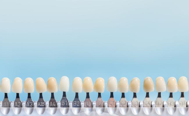 Фото шкалы Vita для определения цвета будущих виниров.