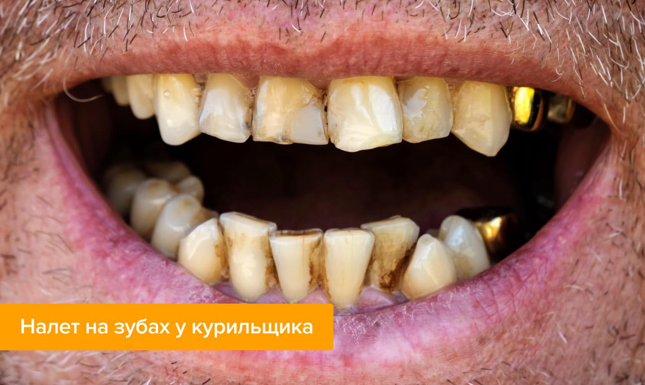 Фото налета на зубах у курильщика