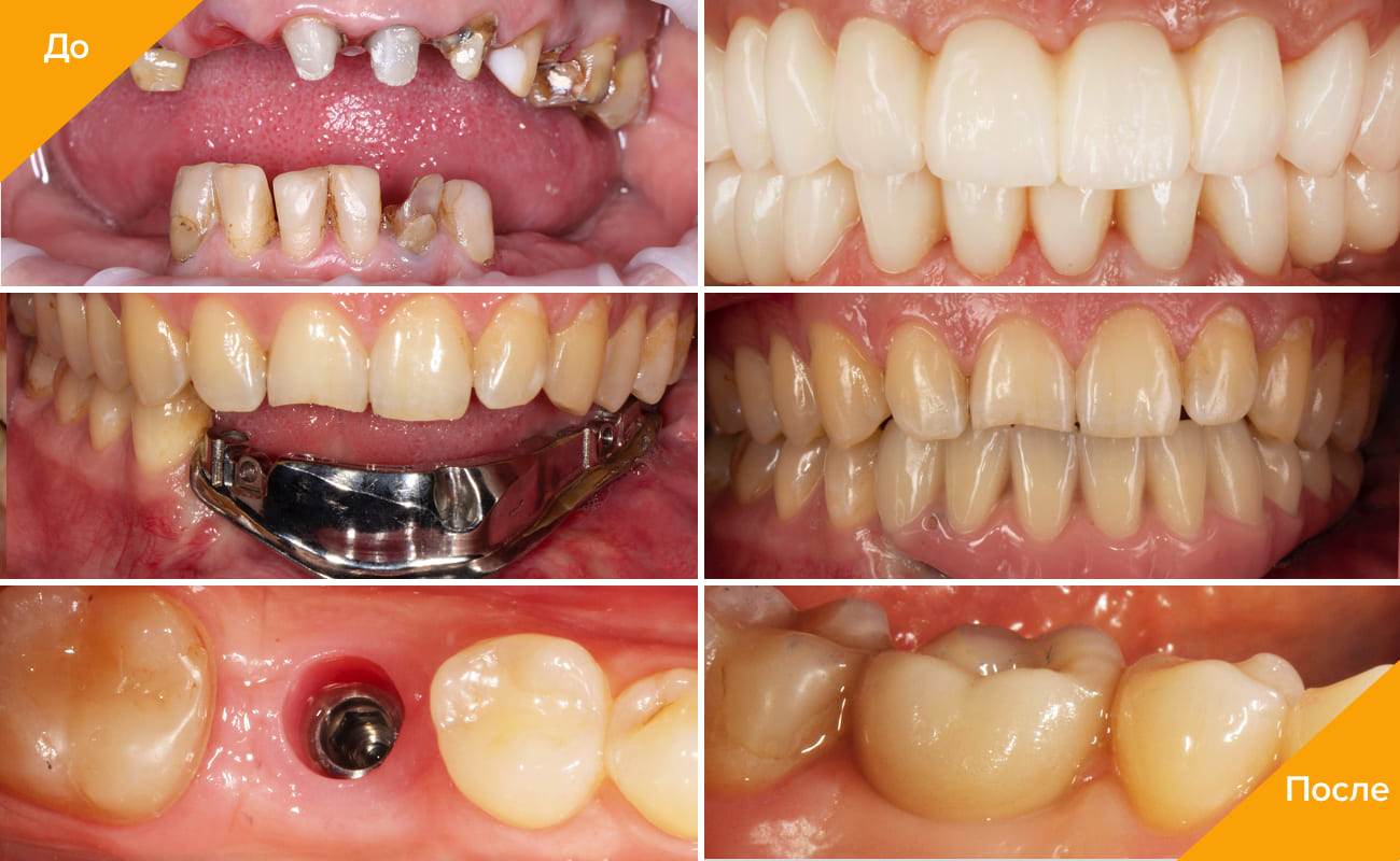 Фото пациентов до и после протезирования на имплантах