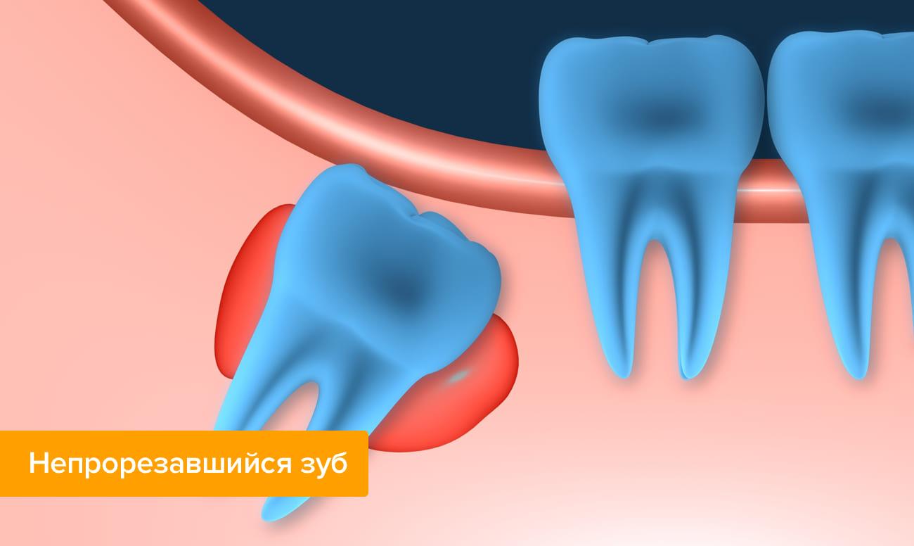 Непрорезавшийся зуб в картинках
