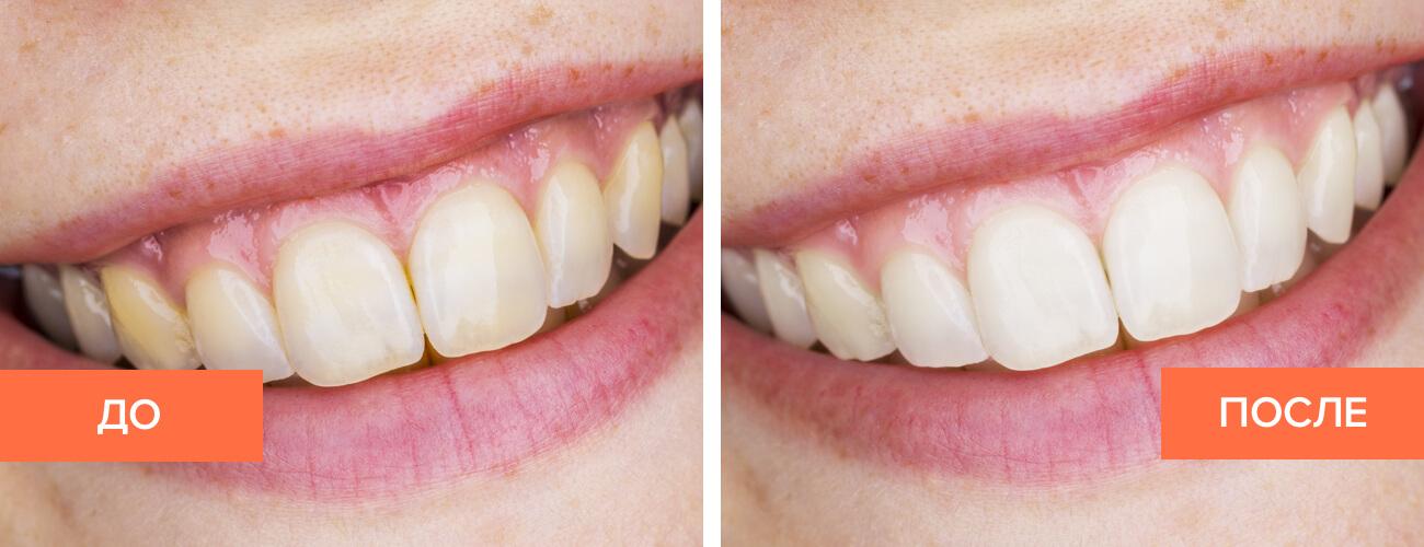 Фото пациента до и после домашнего отбеливания зубов