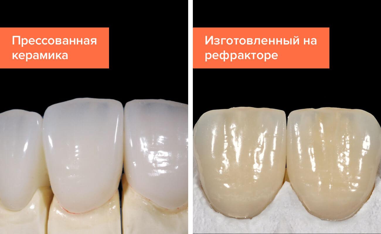 керамические виниры фото до и после
