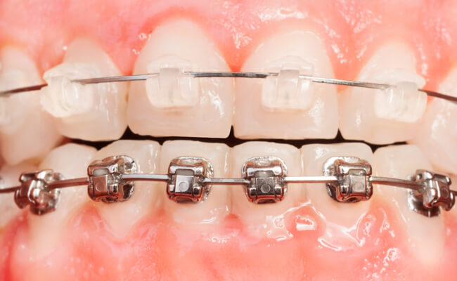 Фото комбинированных брекетов на зубах