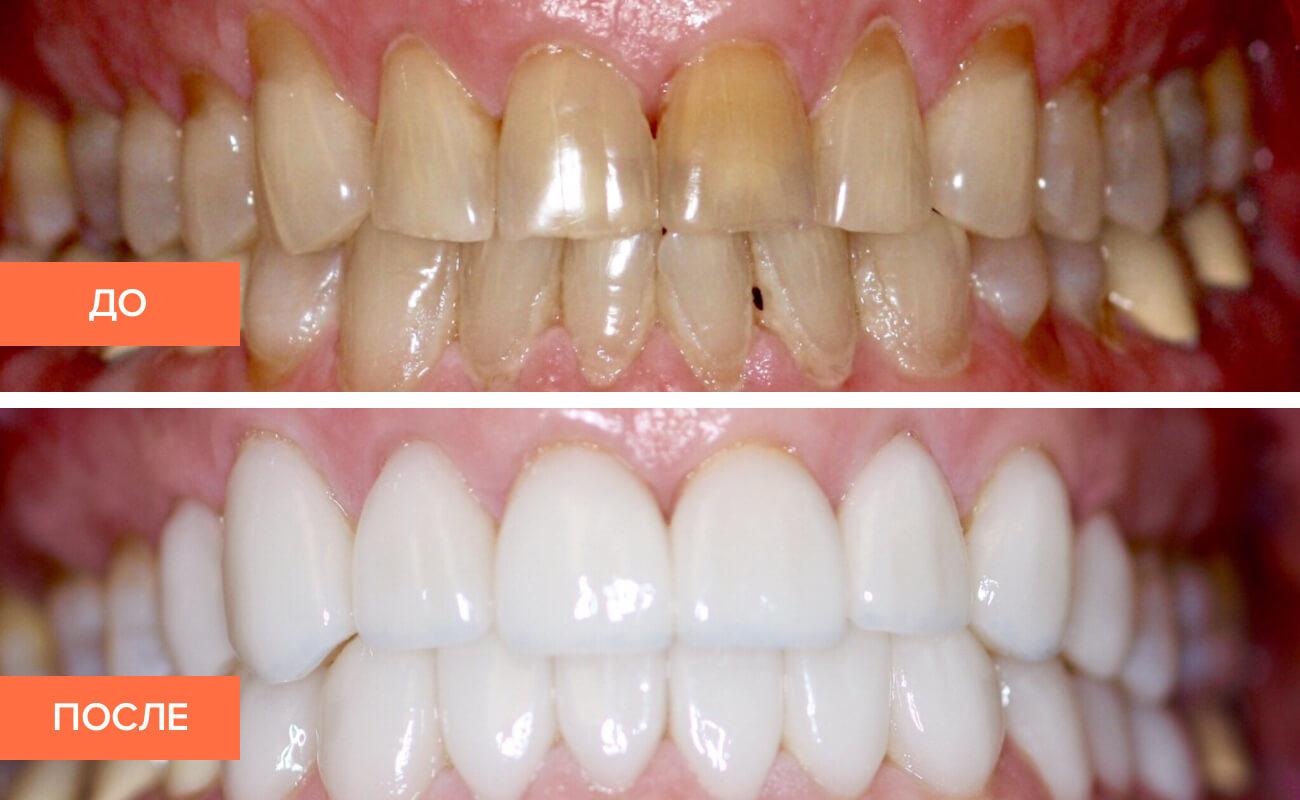 Фото пациента до и после установки виниров без обточки