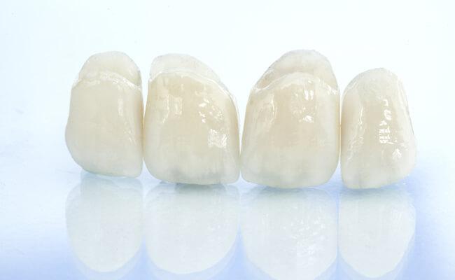 Фото накладок на кривые зубы