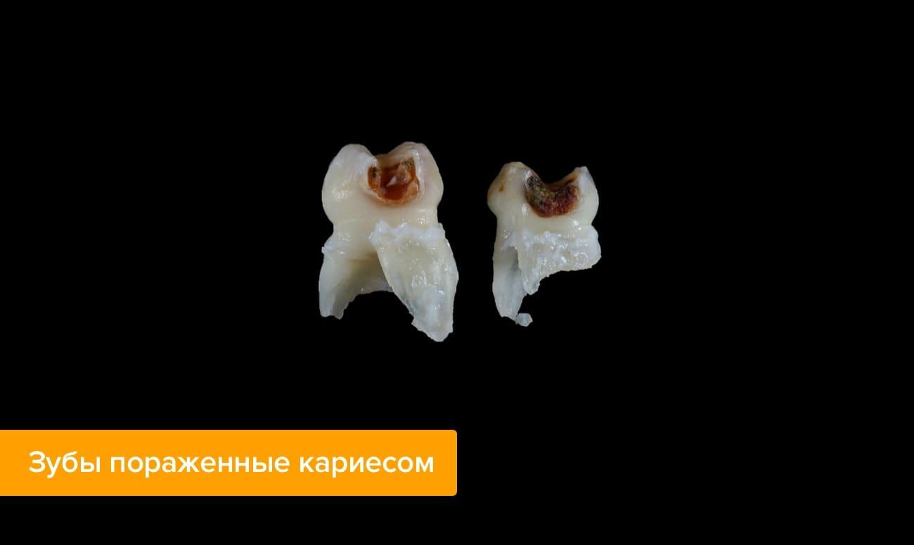 Фото зубов пораженных кариесом