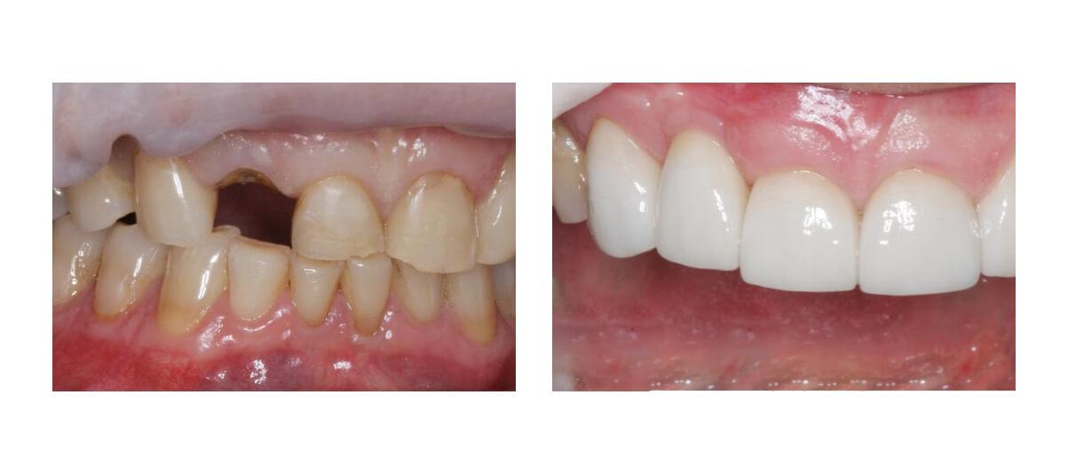 Фото пациента до и после уимплантации