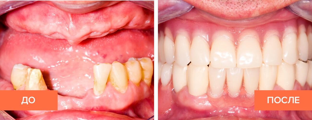 Фото пациента до и после установки частично съемного протеза