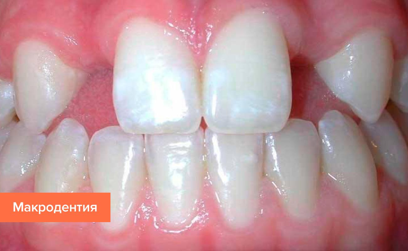 Фото макродентии зубов