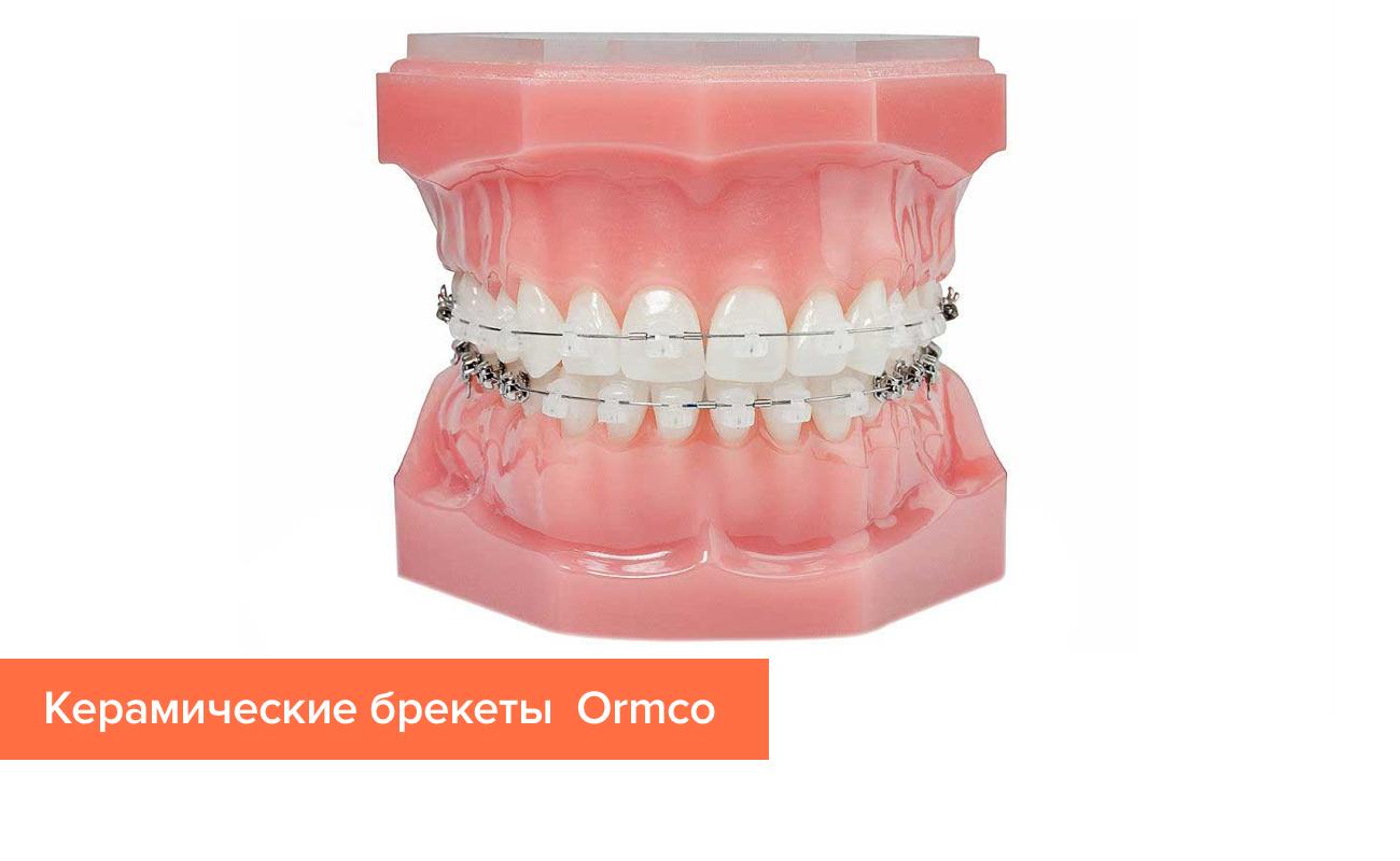 Фото керамических брекетов на зубах от компании Ormco