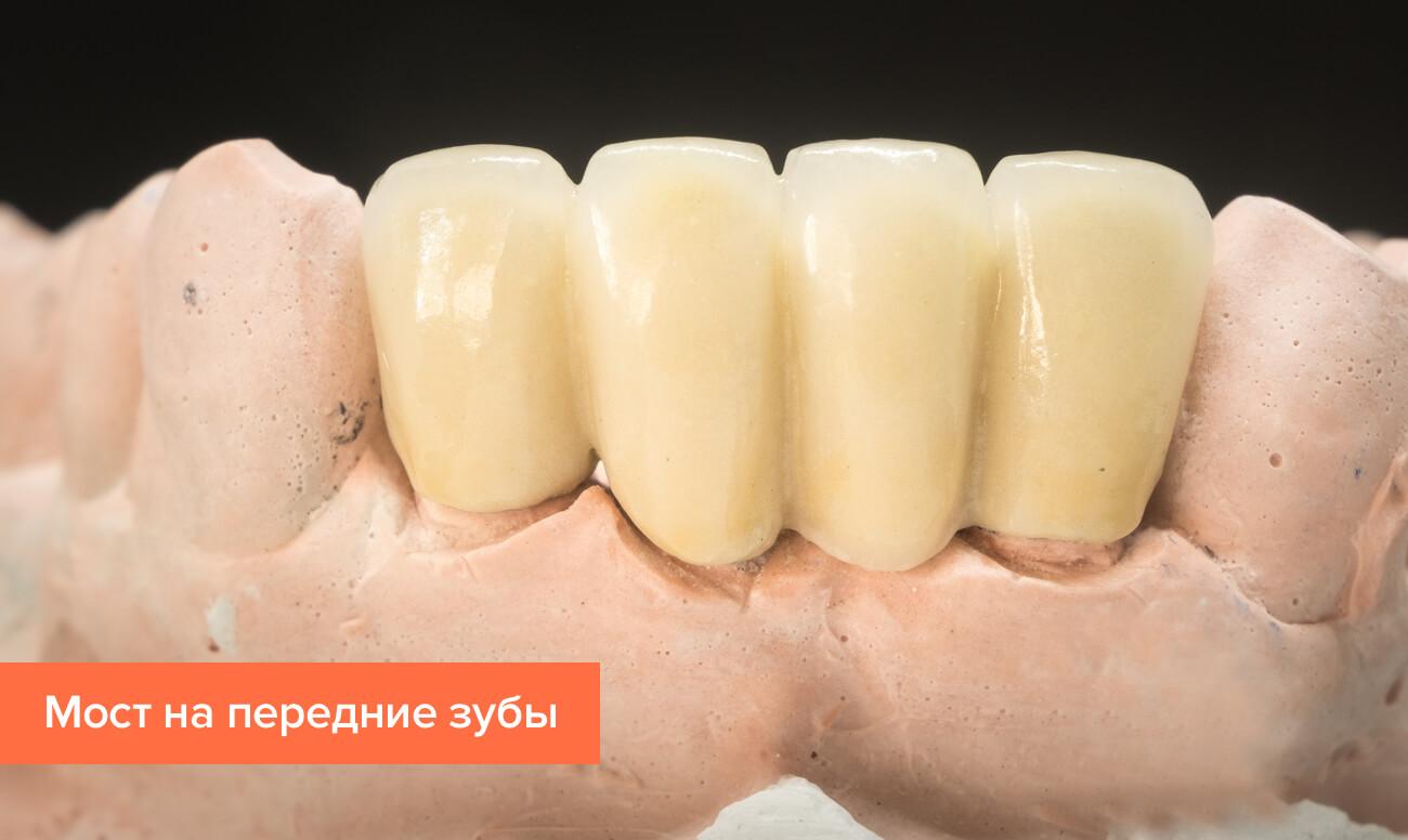 Фото моста на передние зубы