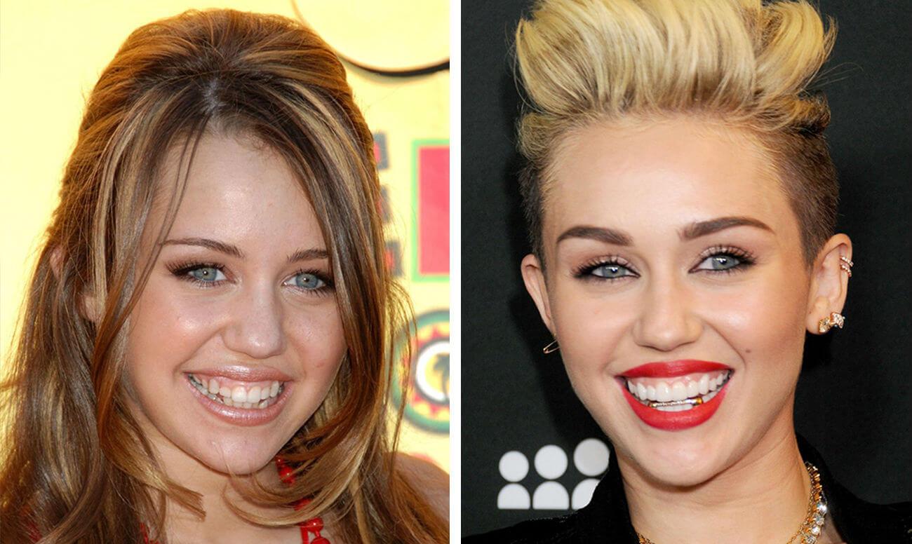 Улыбка с винирами фото до и после