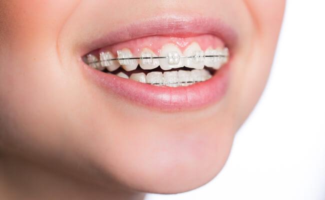 Фото сапфировых брекетов на зубах