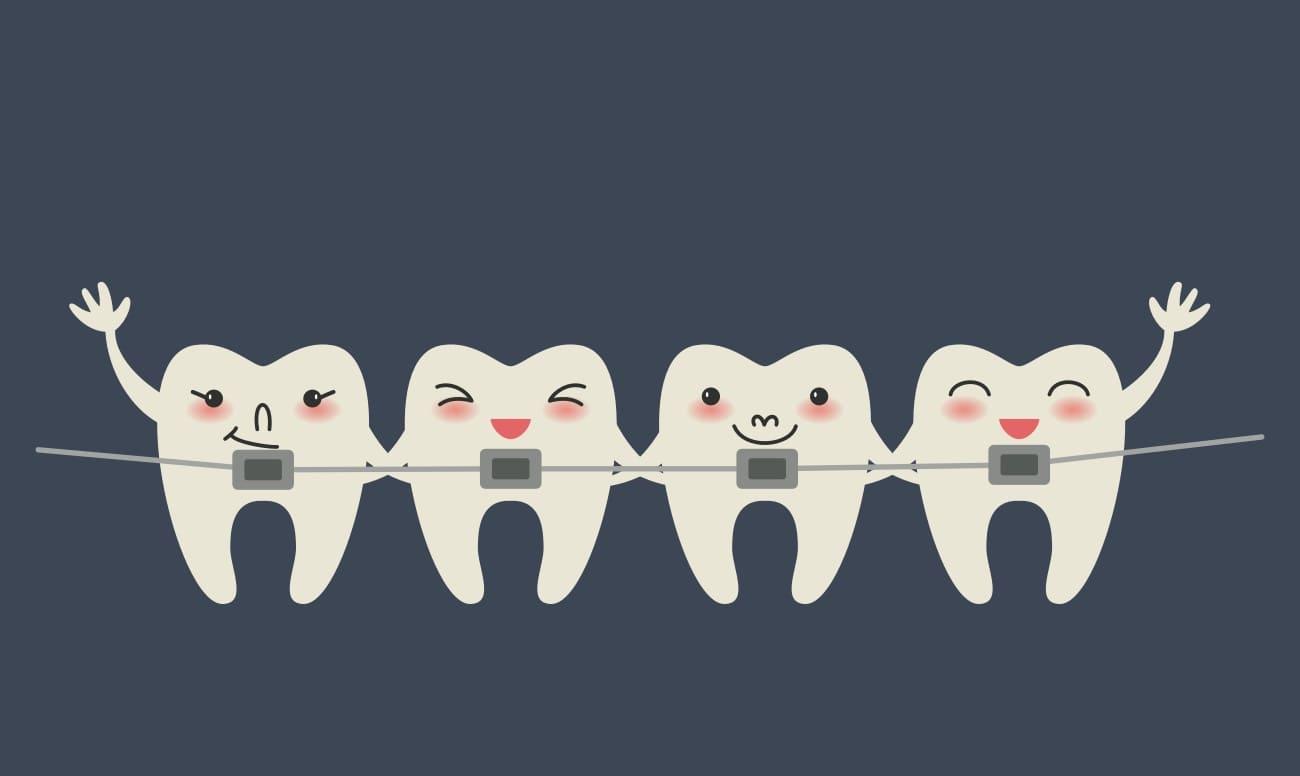 Брекеты на зубах в картинках