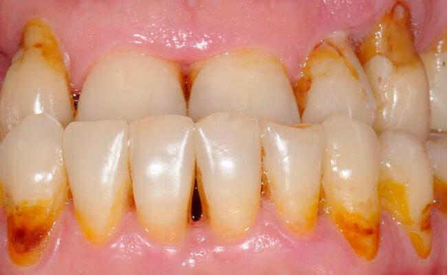 Фото пациента с прикорневым кариесом передних зубов.