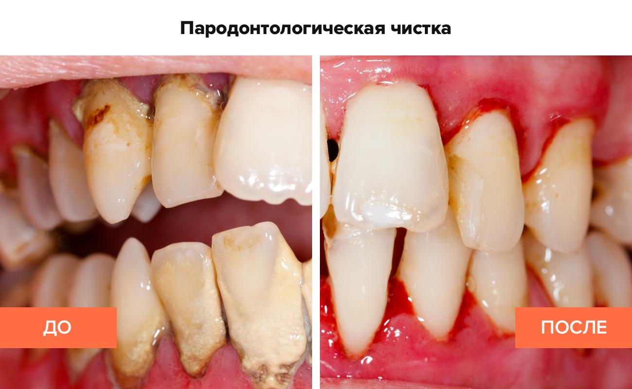 Фото до и после пародонтологической чистки