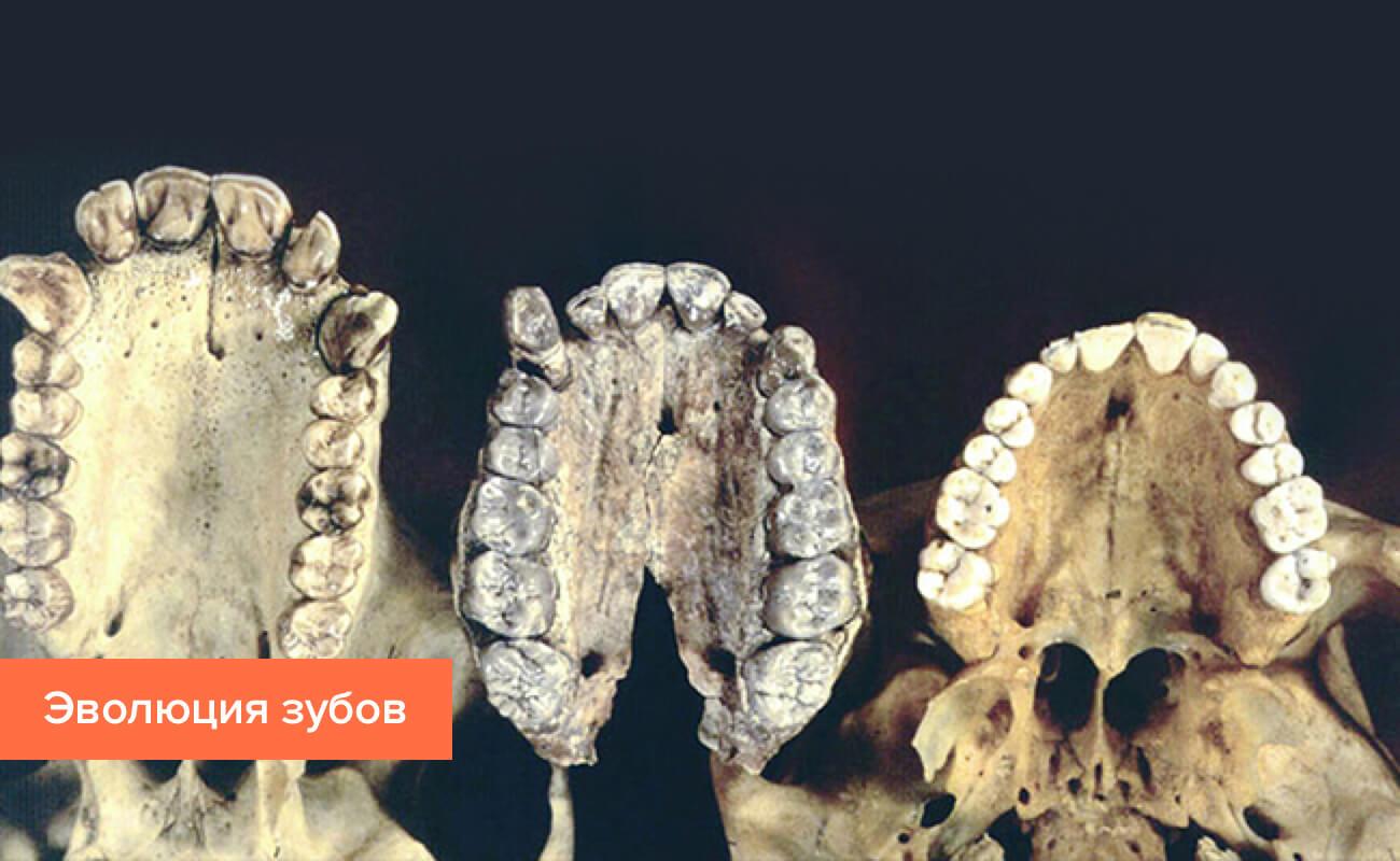 Фото зубов на разных этапах эволюции