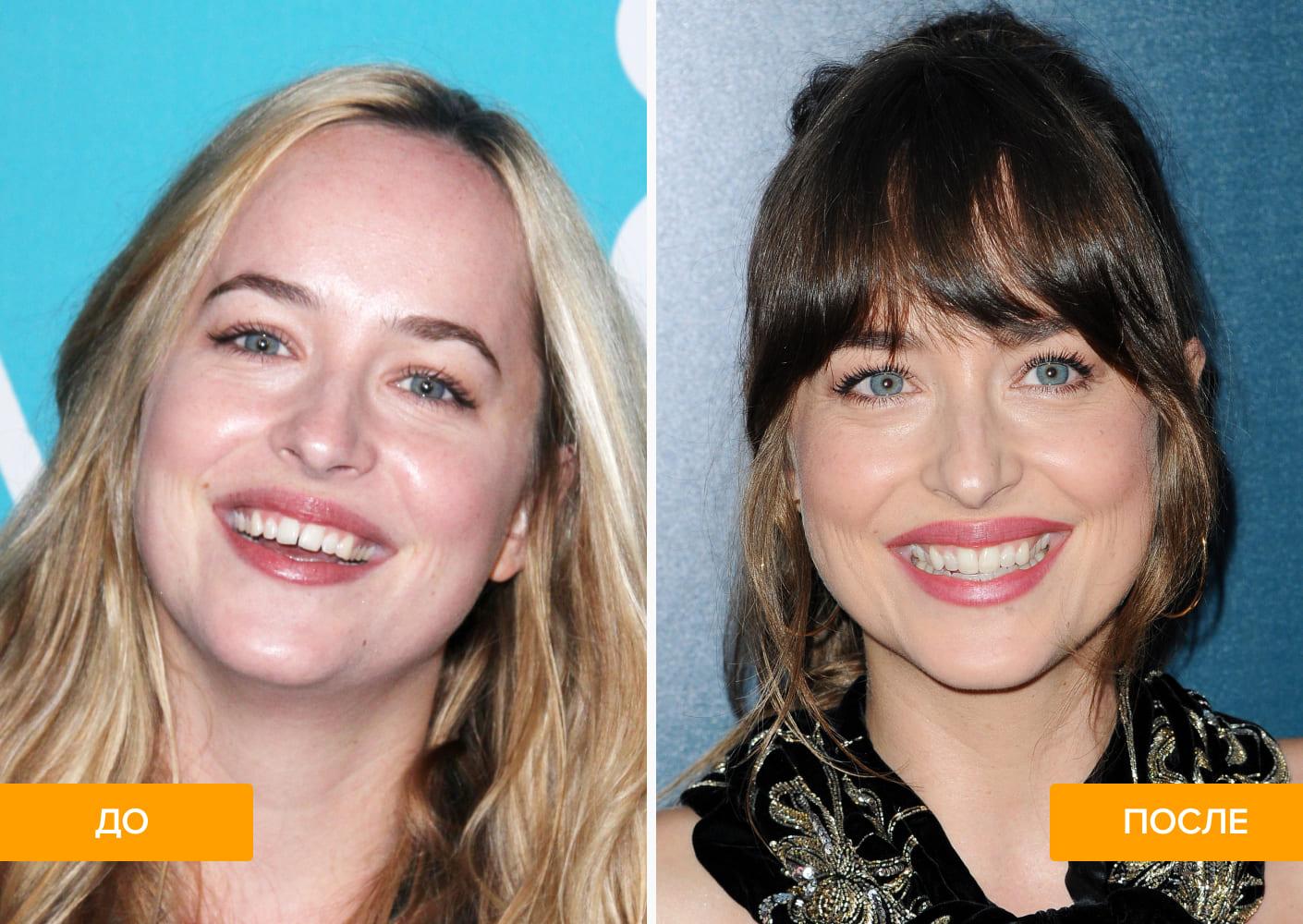 Фото Дакоты Джонсон до и после лечения диастемы